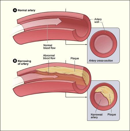 Apa itu kolesterol ldl?